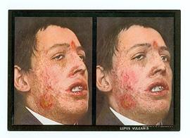 adult_lupus_vulgaris_stereoscopic_skin_clinic_1914-card